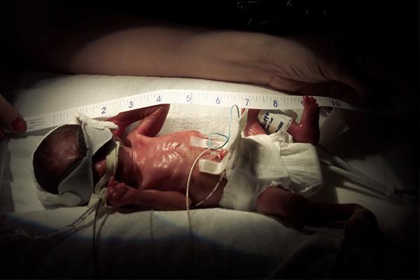 婴儿-毒宝宝-2.jpg